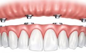Dentes fixos em um dia