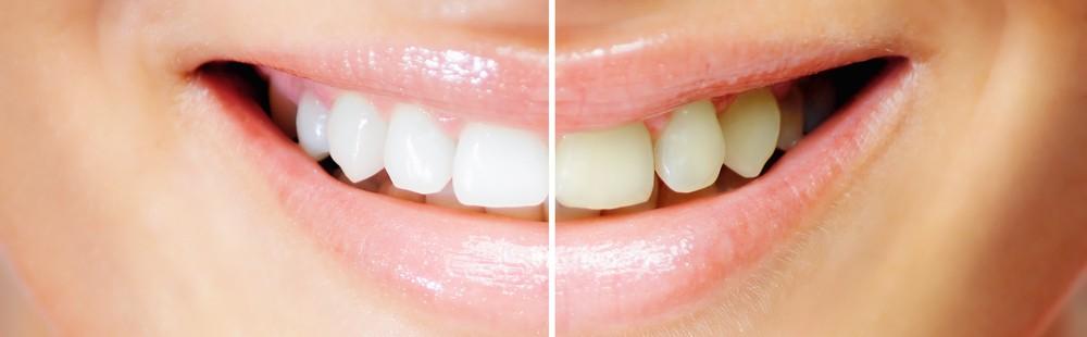 Branqueamento dentário: Clínica Dentária Jardim dos Arcos, em Paço de Arcos
