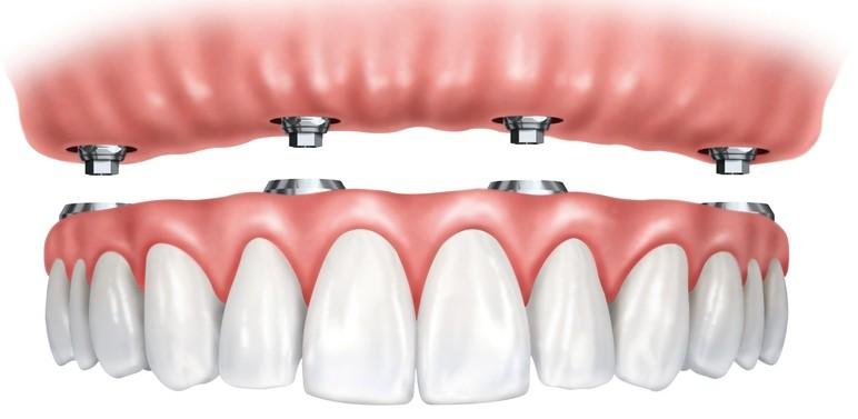 Próteses totais convencionais versus retidas por implantes