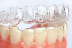 Goteira de branqueamento: Clínica Dentária Jardim dos Arcos, em Paço de Arcos