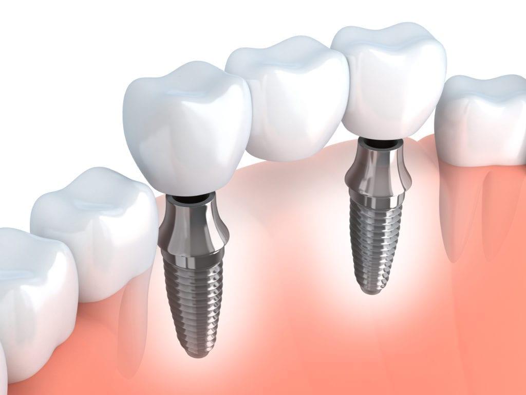 clinica dentaria jardim dos arcos implantes
